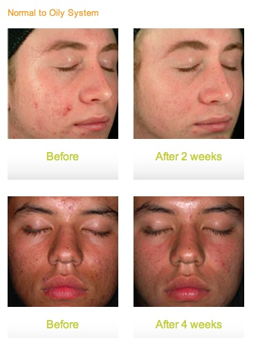 Acne Treatment Glendora CA