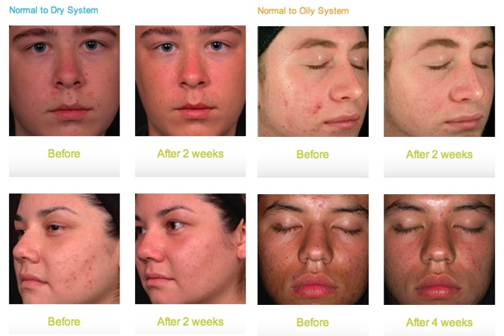 Acne Treatment Glendora