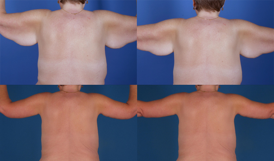Body Contouring Treatment Glendora