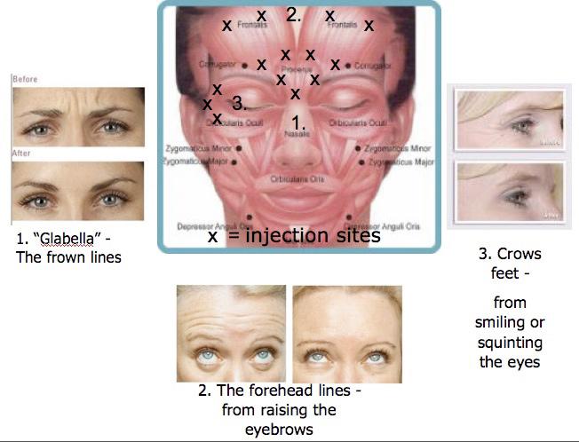 Botox Examples