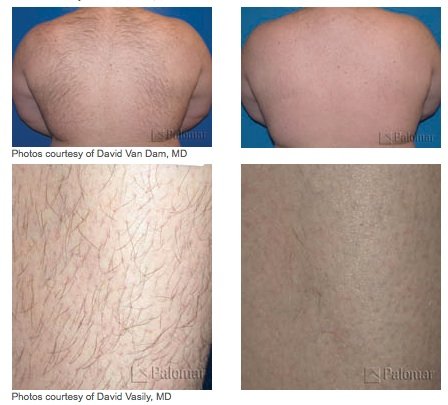 Laser Treatment Glendora, CA