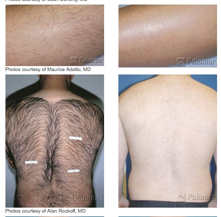 Laser Treatment Glendora CA