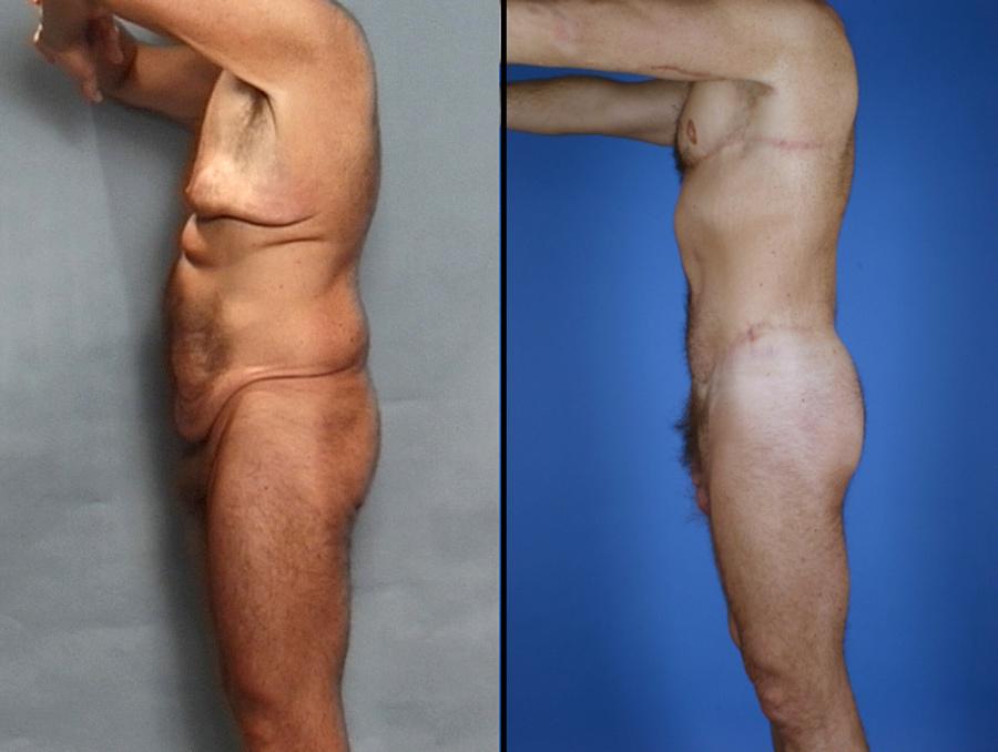 Male Procedures Glendora CA