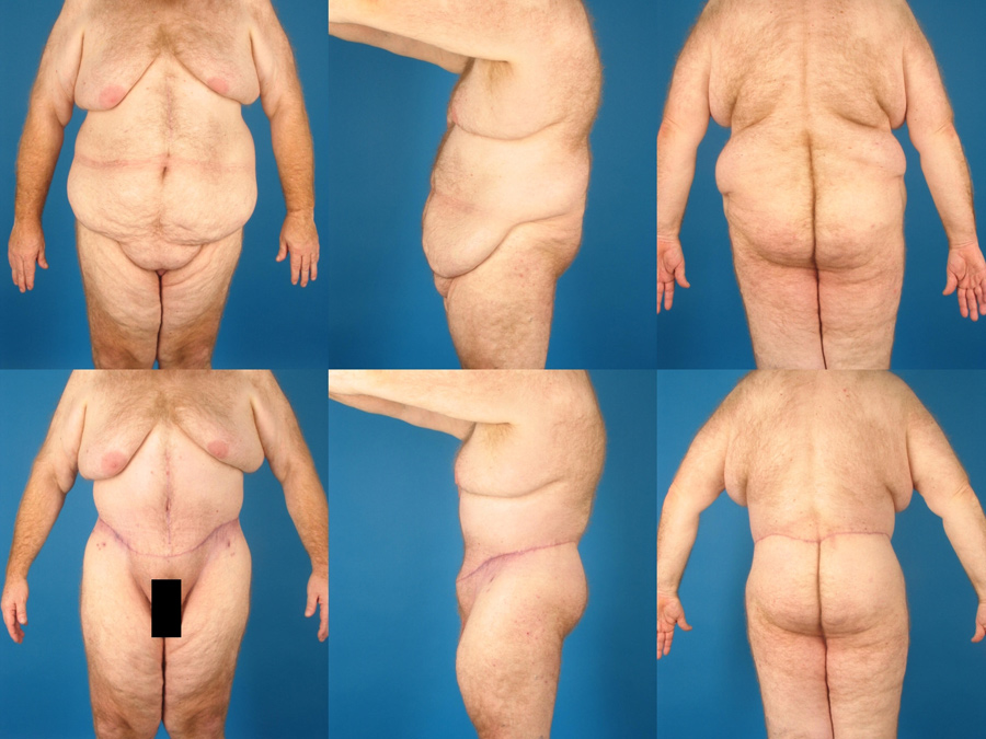 Male Procedures Glendora