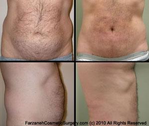 Male Cosmetic Surgery Glendora CA