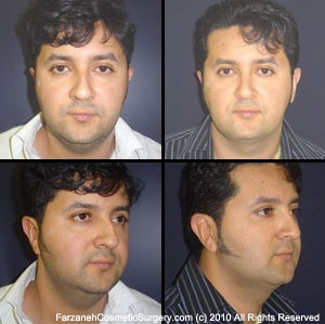 Male Cosmetic Surgery Glendora