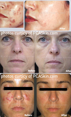 Chemical Peels Treatment Glendora