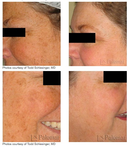 Photofacials Treatment Glendora