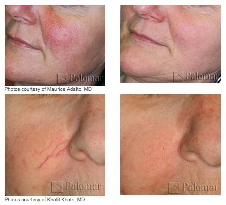 Photofacials Treatment Glendora CA
