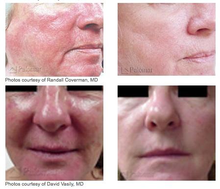 Photofacials Treatment Glendora