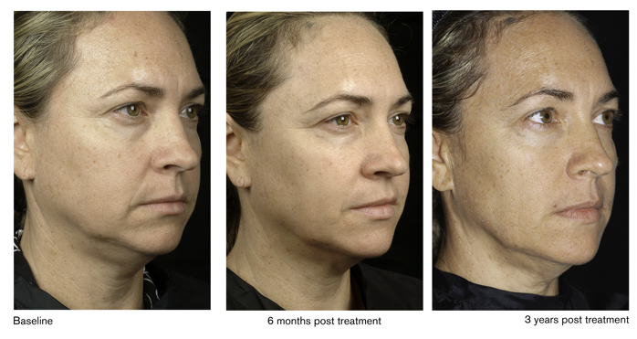 Thermage Treatment Glendora