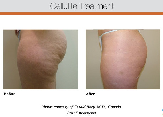 Cellulite Treatment Glendora, CA
