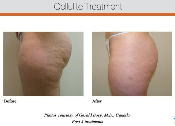Cellulite Treatment Glendora, CA