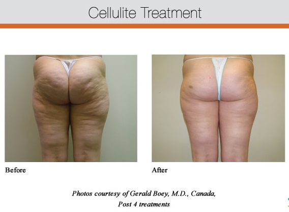 Cellulite Treatment Glendora CA