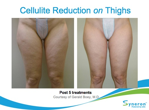 Cellulite Reduction Treatment Glendora