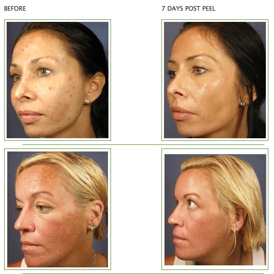 VI Peel Treatment Glendora CA