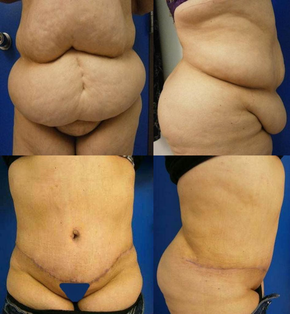 Abdominoplasty Treatment Glendora