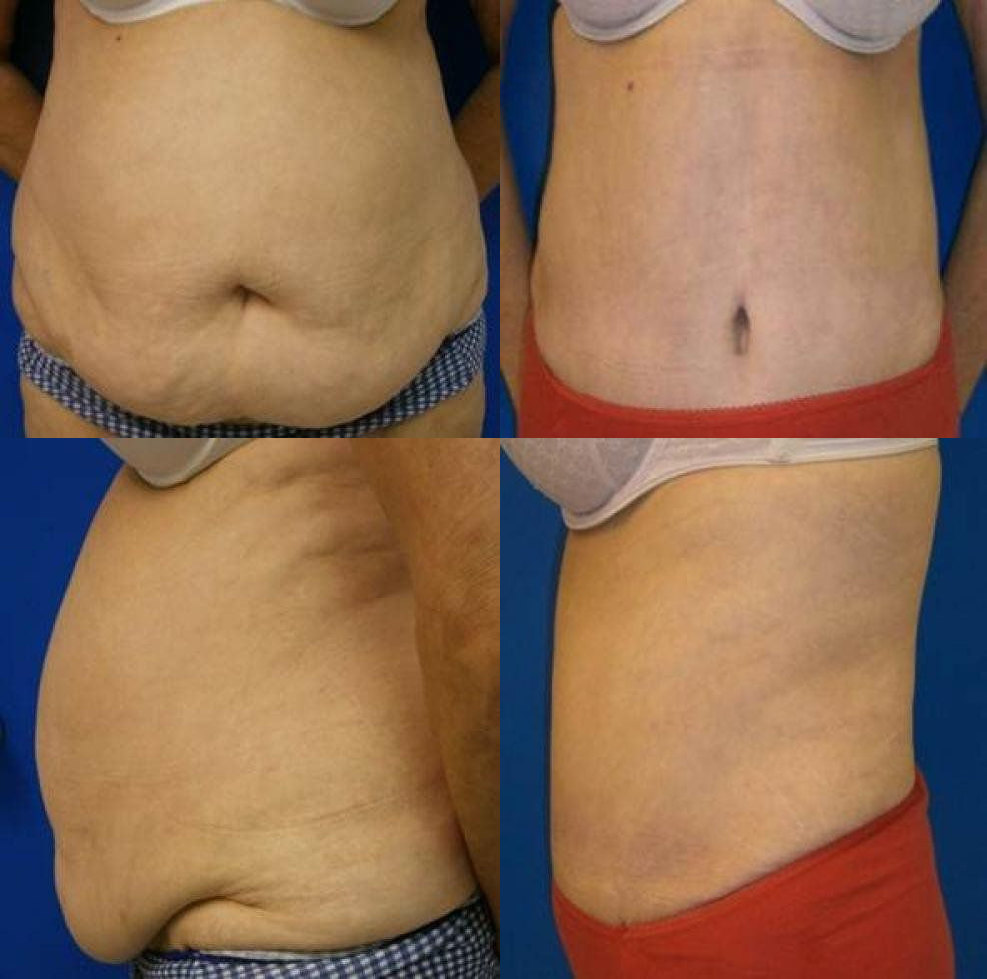 Abdominoplasty Treatment Glendora CA