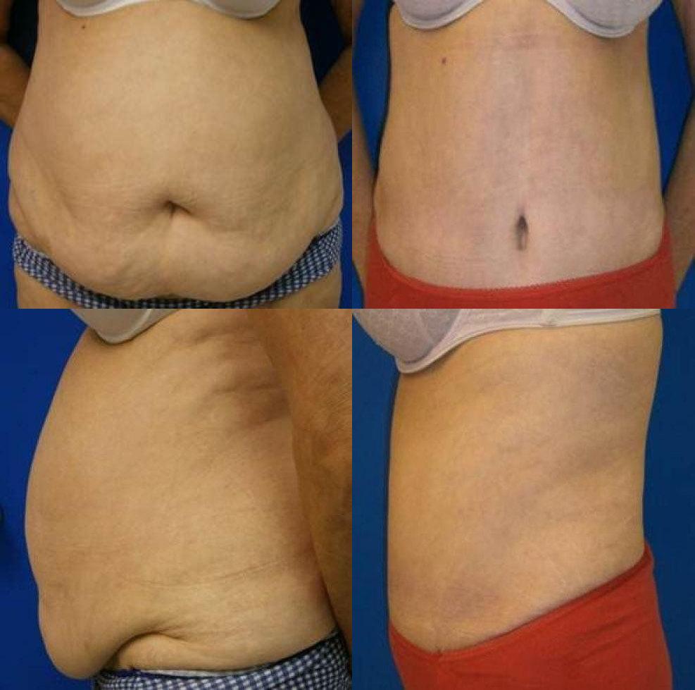 Abdominoplasty Treatment Glendora CA