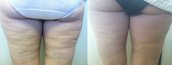 VelaShape™ Before & After