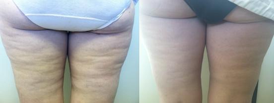 VelaShape™ Before & After