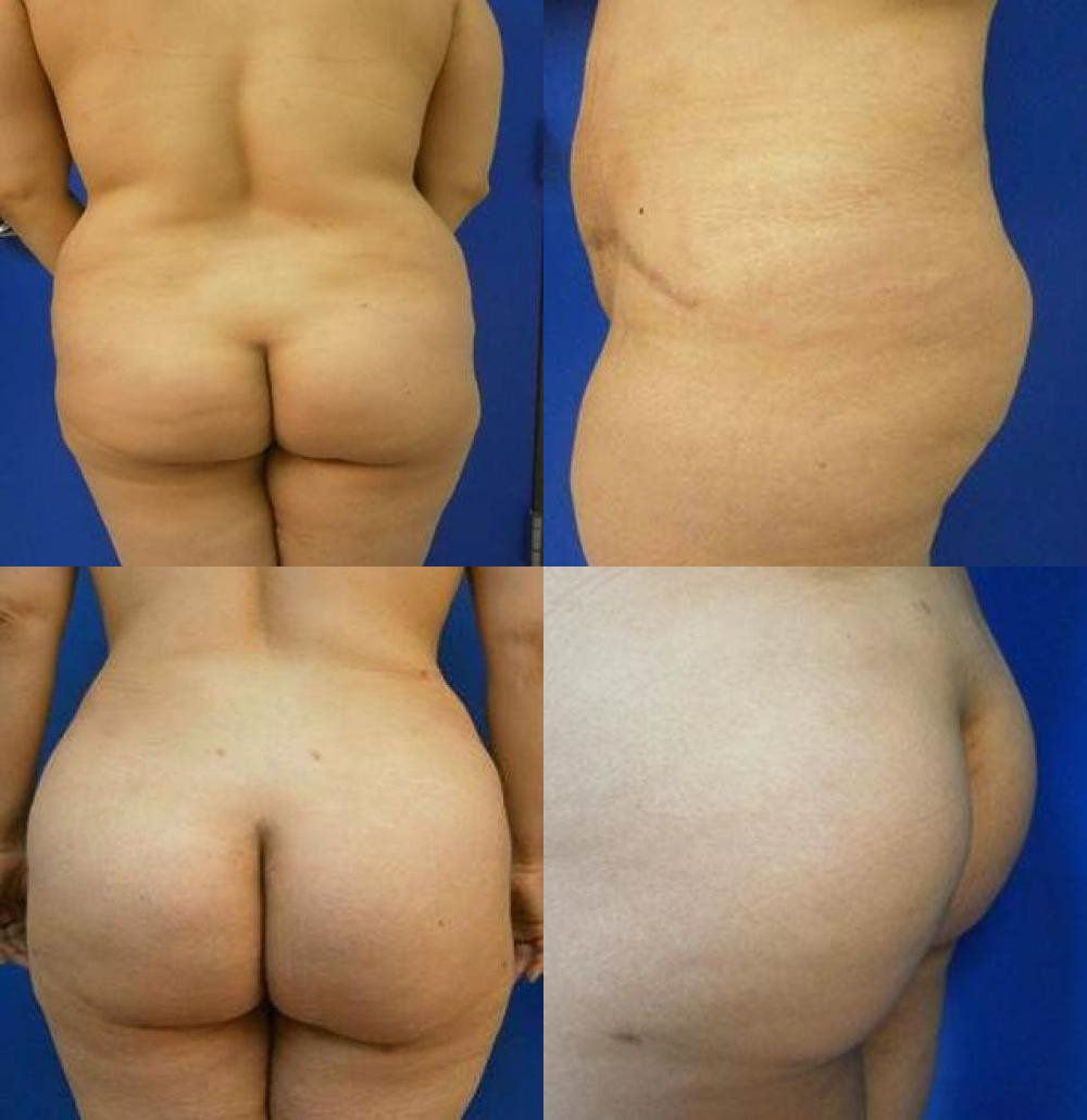 Brazilian Butt Lift Treatment Glendora CA