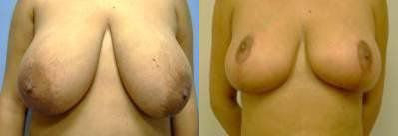 Breast Lift Treatment Glendora