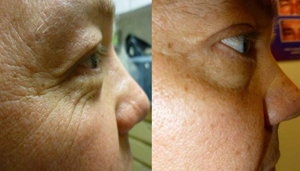 Eyelid Surgery Glendora CA