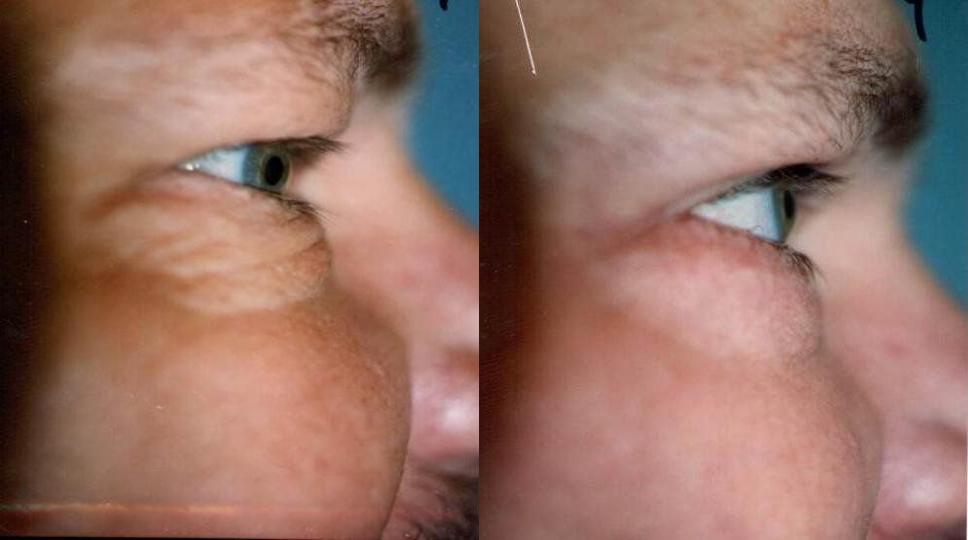 Eyelid Surgery Glendora