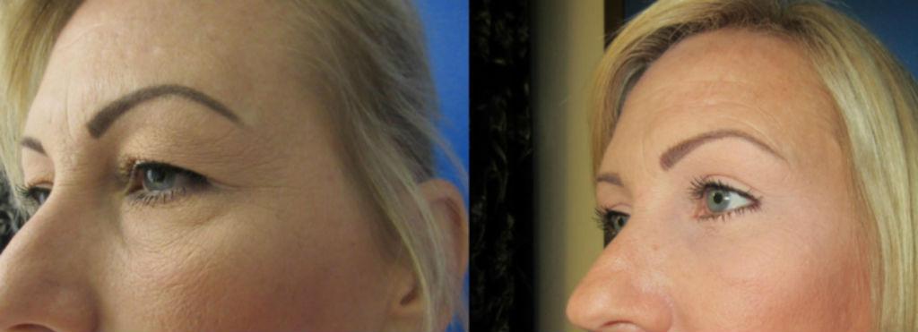 Eyelid Surgery Glendora, CA