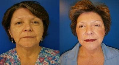 Facelift Treatment Glendora CA