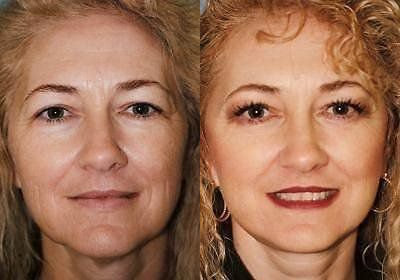 Facelift Treatment Glendora, CA