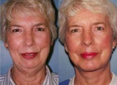 Facelift Treatment Glendora