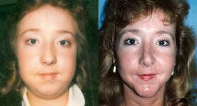 Facial Implants Glendora, CA