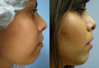 Facial Implants Glendora