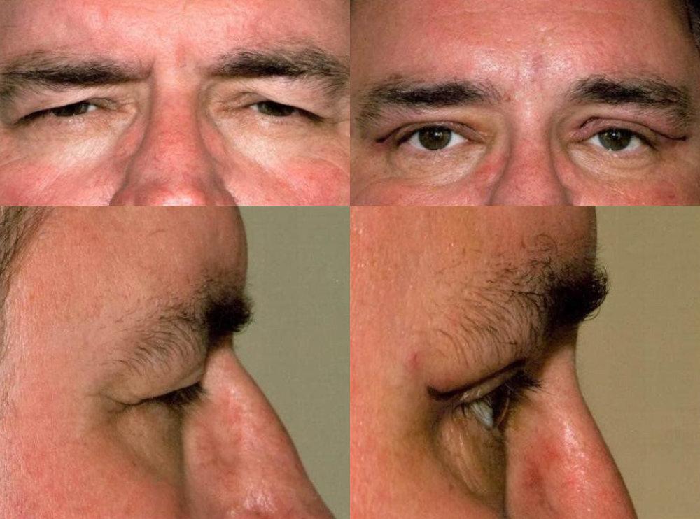 Forehead Lift Glendora