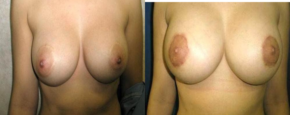 Breast Implant Exchange Glendora, CA