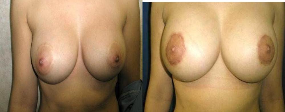 Breast Implant Exchange Glendora, CA