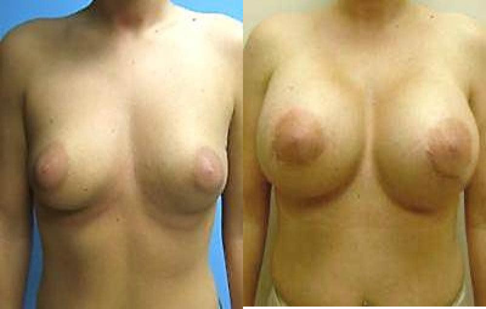 Breast Implant Exchange Glendora
