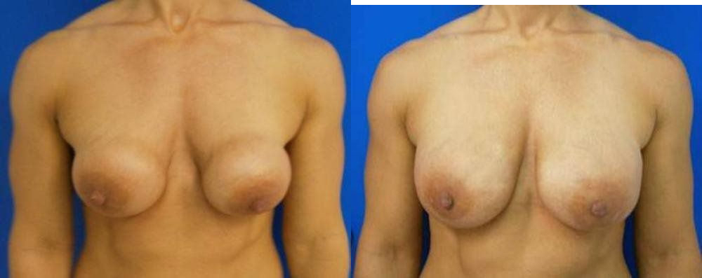 Breast Implant Exchange Glendora CA