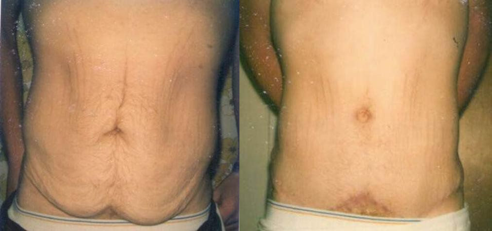 Male Tummy Tuck Procedure Glendora