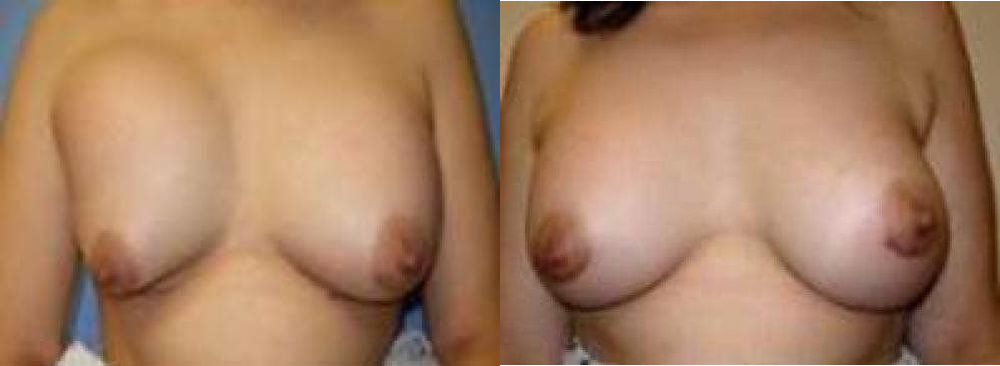 Breast Reconstruction Glendora CA