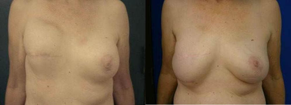 Breast Reconstruction Glendora, CA
