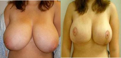 Breast Reduction Glendora