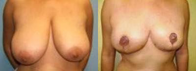 Breast Reduction Glendora CA