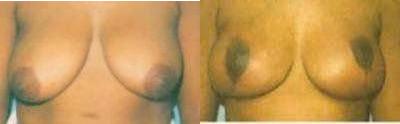 Breast Reduction Glendora, CA