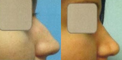 Rhinoplasty Treatment Glendora