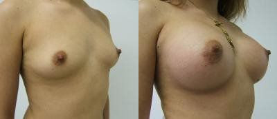 Breast Augmentation Glendora