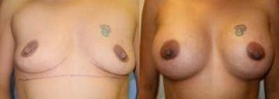 Breast Augmentation Procedures Glendora