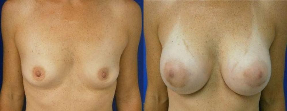Breast Treatment Glendora